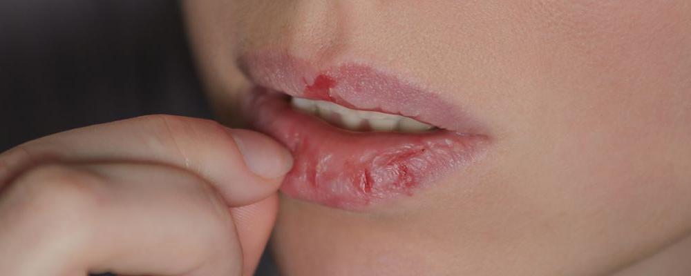 冬天嘴唇干裂是缺少维生素吗 冬天嘴唇干裂该怎么办 嘴唇干裂怎么治疗