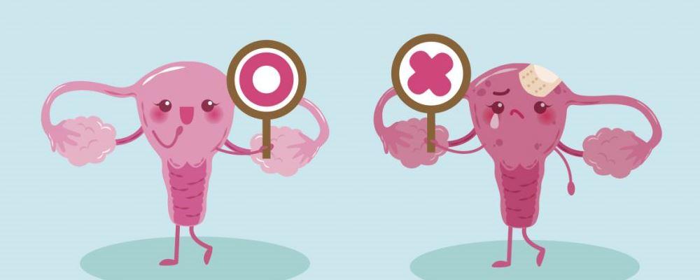 卵巢癌早期症状 卵巢癌怎么判断 卵巢癌怎么预防