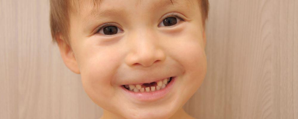 小孩子蛀牙怎么办 小孩子蛀牙的解决方法 小孩子蛀牙了要注意什么
