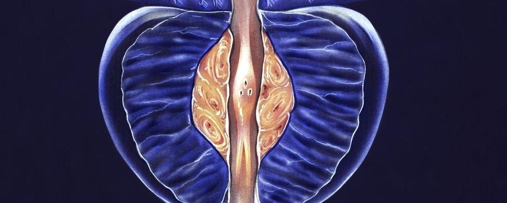 前列腺炎应该如何预防 前列腺炎如何治疗 前列腺炎症状