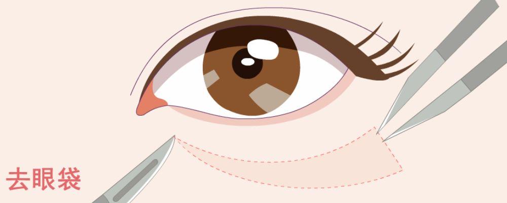 眼袋大怎么办 消除眼袋的方法 去除眼袋的方法