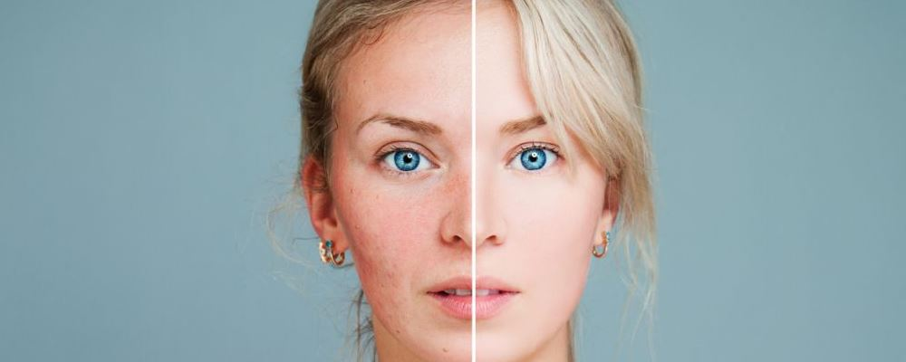 抗衰老的方法 哪个年龄段容易衰老 容易衰老的阶段是哪些