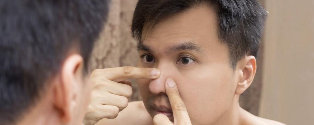 鼻子长痘怎么回事 鼻子长痘怎么办 如何预防鼻子长痘