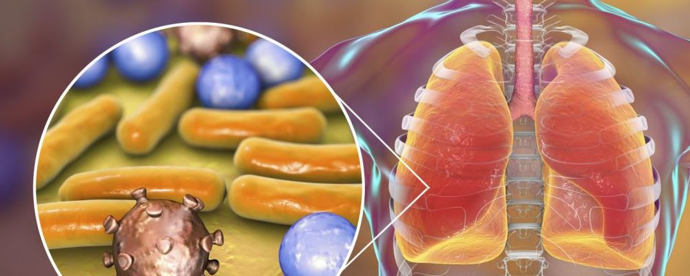 什么是新型冠状病毒 新型冠状病毒会人传人吗 新型冠状病毒感染的肺炎的传播途径
