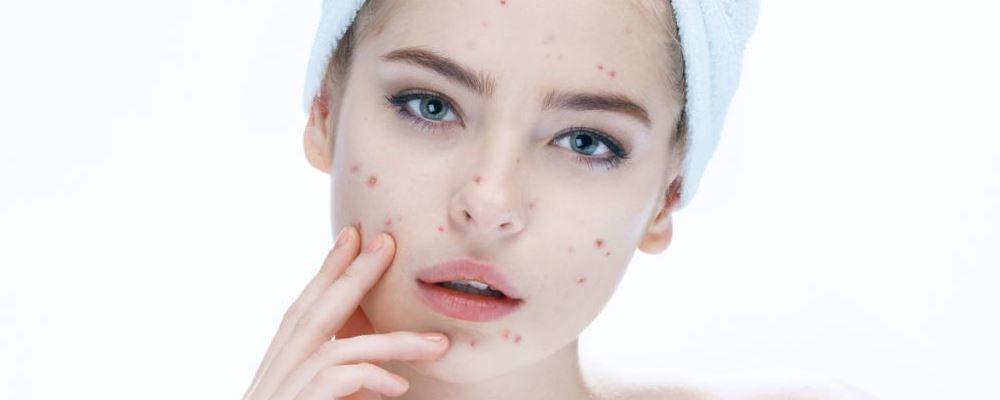 爱长痘痘怎么办 导致长痘痘的原因 常吃哪些食物会长痘痘