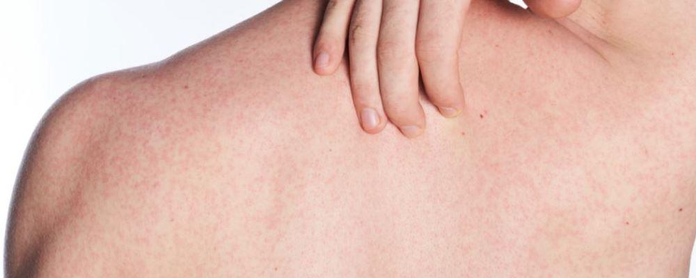 春天荨麻疹发作该怎么办 春天荨麻疹发作要注意什么 春天荨麻疹发作的注意事项