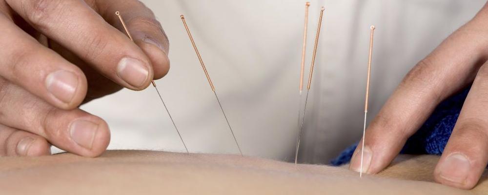 针灸前要做什么准备 针灸后多久可以洗澡 针灸有什么要注意的