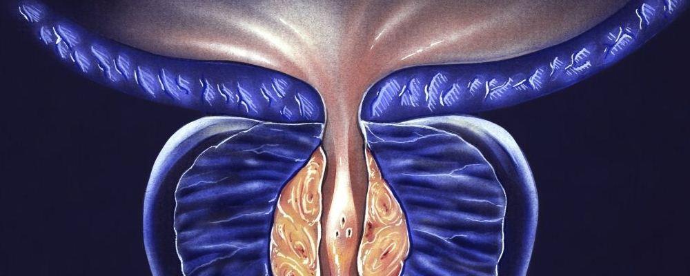 前列腺炎有什么症状 治疗前列腺应注意什么 前列腺需要注意什么