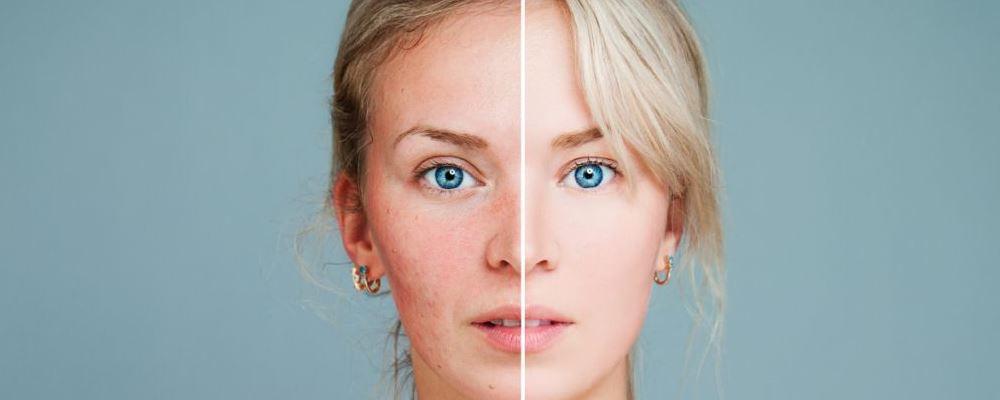 女人绝经一般都多少岁 绝经会引起什么疾病 绝经后怎么保养