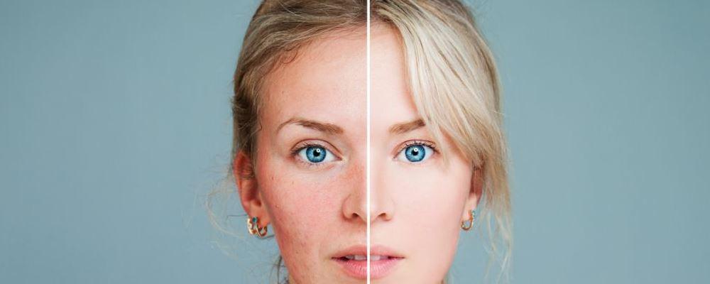 哪些行为会加速女性衰老 减缓女性衰老的方法 导致女性衰老的行为