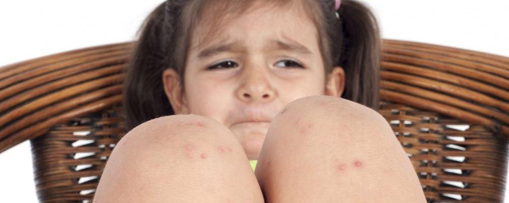 宝宝得了湿疹要注意什么 宝宝得了湿疹该如何护理 宝宝得了湿疹的护理方法