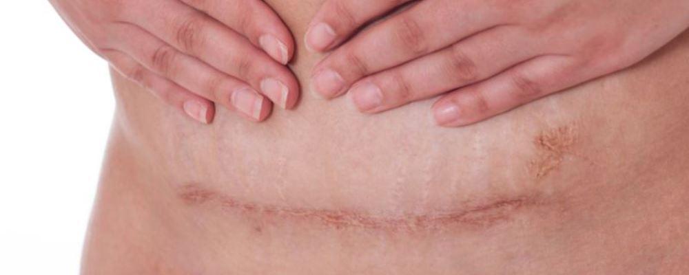 剖腹产后遗症有哪些 剖腹产后遗症 什么是剖腹产
