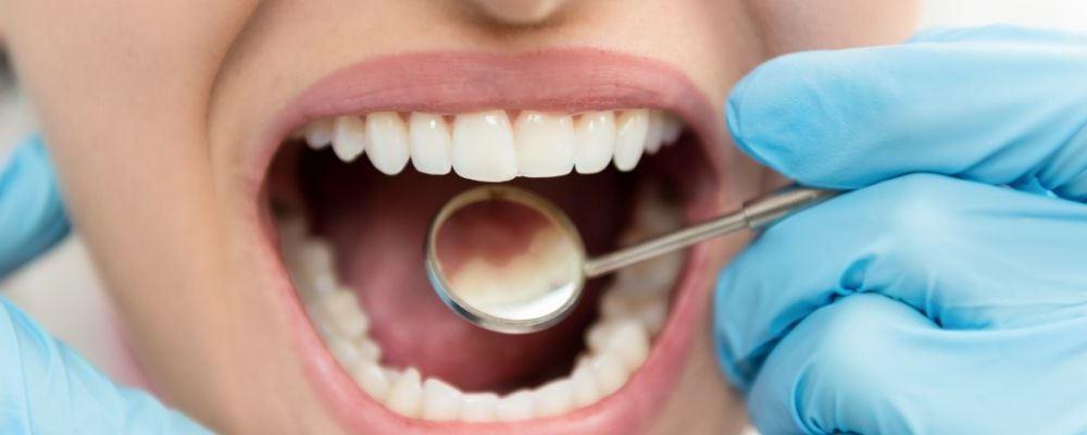 牙缝清洁到底有多重要 清洁口腔要这样做