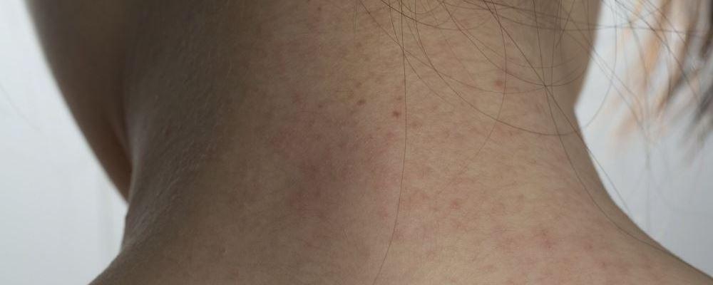 为什么春季是荨麻疹高发期 儿童荨麻疹的病因是什么 饮食会引起儿童荨麻疹吗