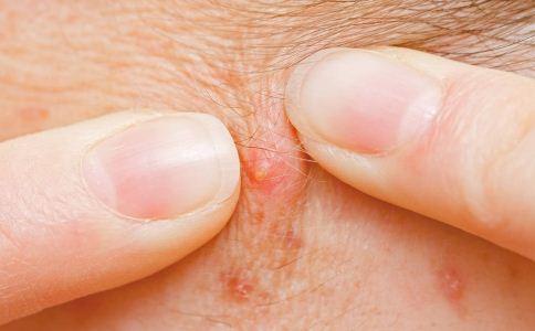 毛囊炎是怎么引起的 毛囊炎的诱因有哪些 毛囊炎是怎么形成的