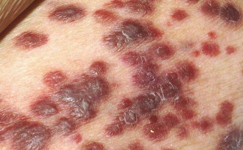 单纯疱疹是什么 什么是单纯疱疹 单纯疱疹是什么病