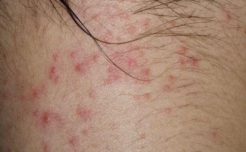 荨麻疹有哪些症状 荨麻疹的症状有哪些 荨麻疹会怎么样