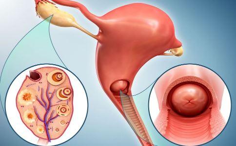 卵巢囊肿怎么引起的 卵巢囊肿的病因 卵巢囊肿是什么原因引起