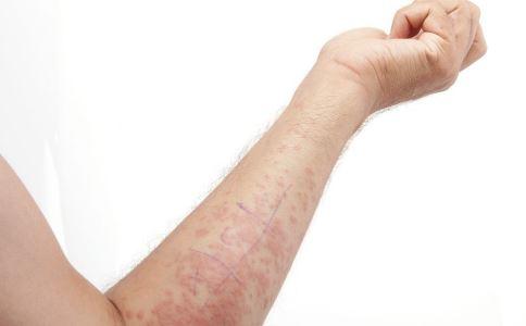 神经性皮炎有什么症状 神经性皮炎的症状有哪些 什么是神经性皮炎
