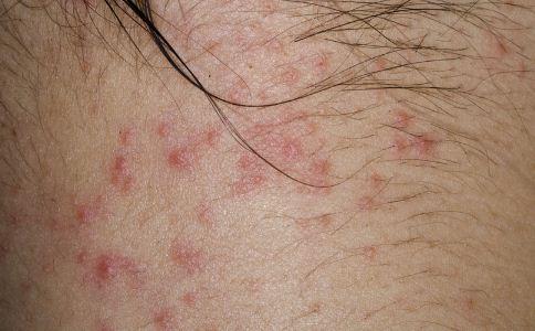 玫瑰糠疹有什么症状 玫瑰糠疹症状有哪些 玫瑰糠疹有什么表现