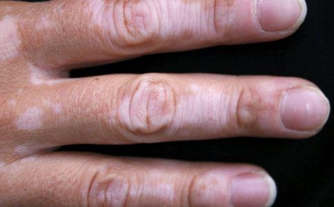 掌跖角化症的症状有哪些 掌跖角化症的症状 掌跖角化症症状有哪些