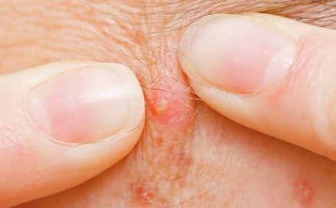 毛囊炎用什么药治疗 毛囊炎怎么治疗 毛囊炎怎么诊治