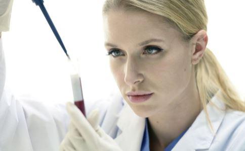 血瘀体质的血常规表现 查血常规可以验出血瘀吗 血瘀体质血常规怎