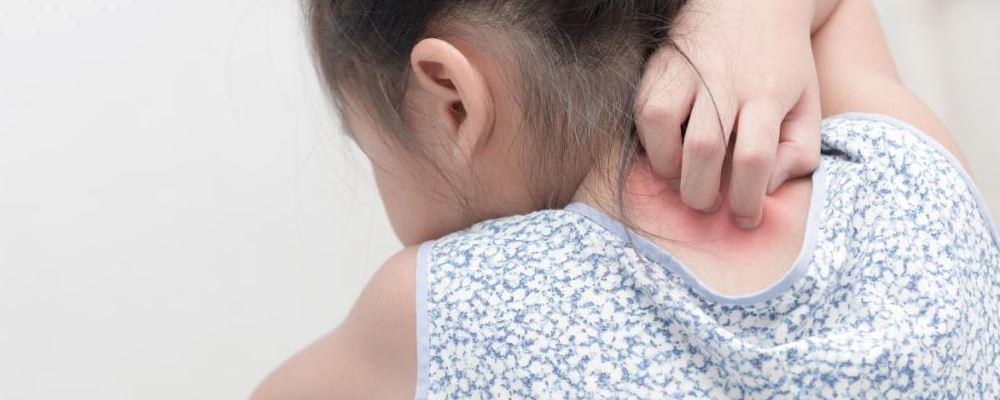幼儿急疹的症状 幼儿急疹的表现 幼儿急疹