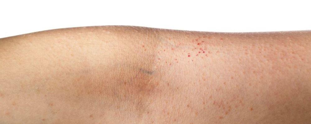 粟丘疹 粟丘疹的症状 粟丘疹有哪些症状