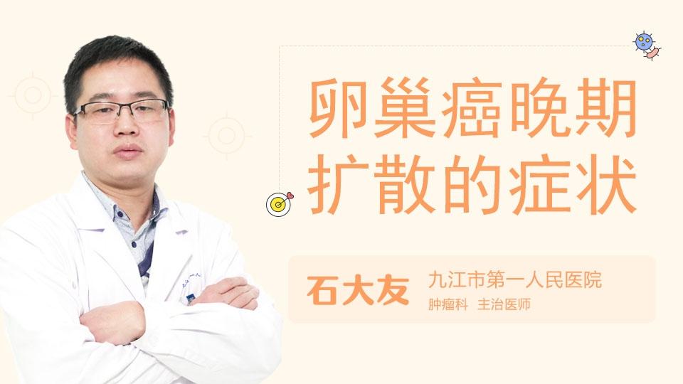 卵巢癌晚期扩散的症状