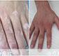 手指出现白斑?啥病?咋治疗