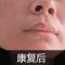 """8年白癜风被终结 不再做""""蒙面女"""""""