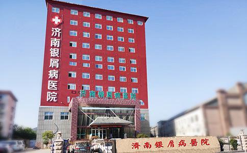 济南银屑病医院