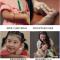 儿童白斑康复案例