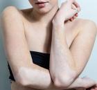 女性白癜风的治疗原则