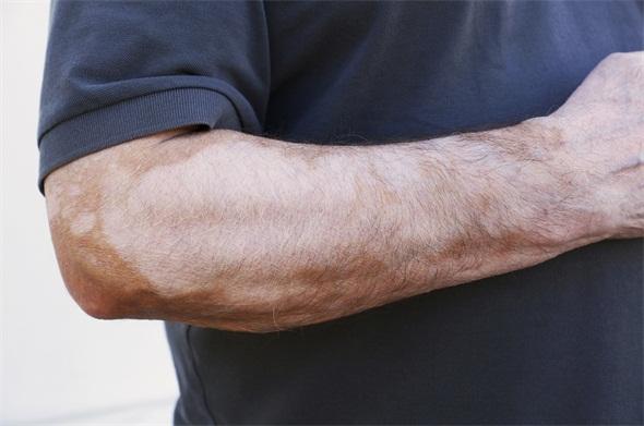 手部白癜风有什么特点