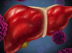 导致肝癌产生的原因有哪些