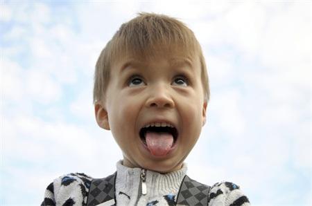 儿童癫痫怎么治疗 儿童癫痫有哪些治疗法 儿童癫痫有什么禁忌