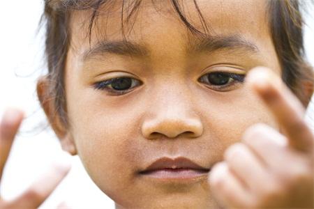 儿童癫痫需要注意什么 儿童癫痫怎么护理 哪些方法可以预防儿童癫痫