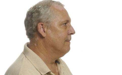 男性白癜风的症状有哪些,男性白癜风患者日常有哪些注意事项,男性白癜风日常该如何护理