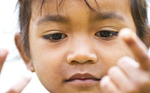 儿童癫痫饮食要注意什么,儿童癫痫饮食怎么地调理,儿童癫痫怎么护理