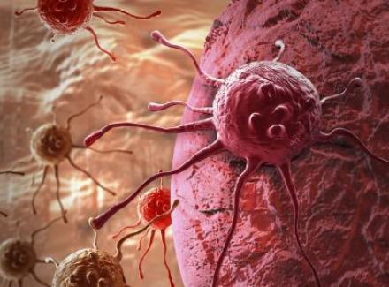 探究肝癌能否治愈 治疗方法有哪些
