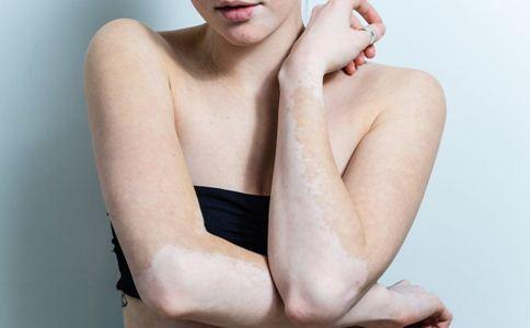 女性白癜风的危害有哪些,女性白癜风有什么危害,女性白癜风如何护理