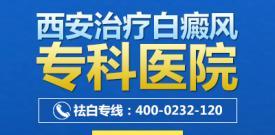 西安白癜风专业治疗的医院