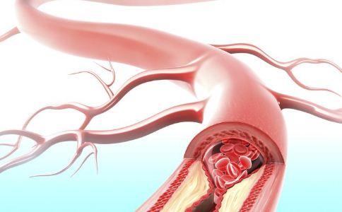 肝血管瘤的症状有哪些,肝血管瘤的表现是什么,肝血管瘤的病因有哪些