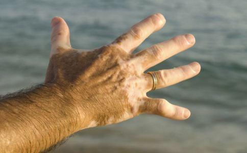 引起手部白癜风的原因,手部白癜风的治疗方法,如何治疗手部白癜风