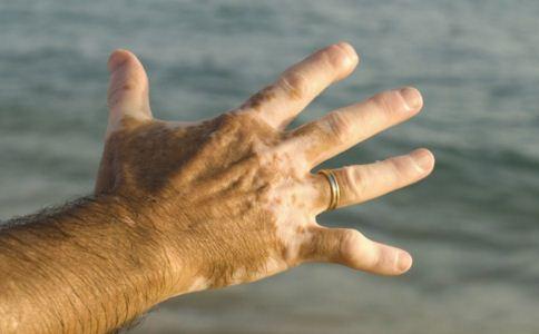 手部白癜风是怎么引起的 如何治疗
