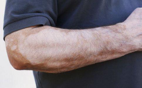 哪些人更容易患白癜风,深色皮肤更容易得白癜风吗,如何预防白癜风
