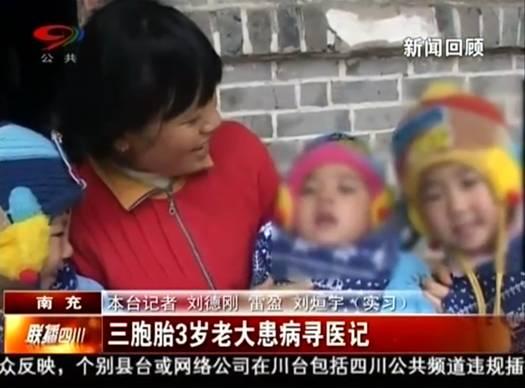 3胞胎3岁老大患病寻医记