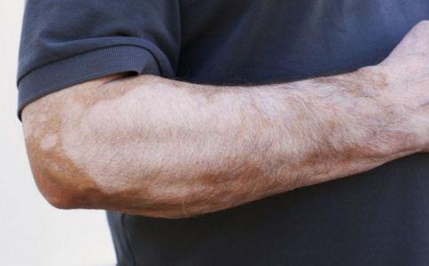 手部白癜风怎么治疗,白癜风治疗后如何护理,手部白癜风可以治好吗